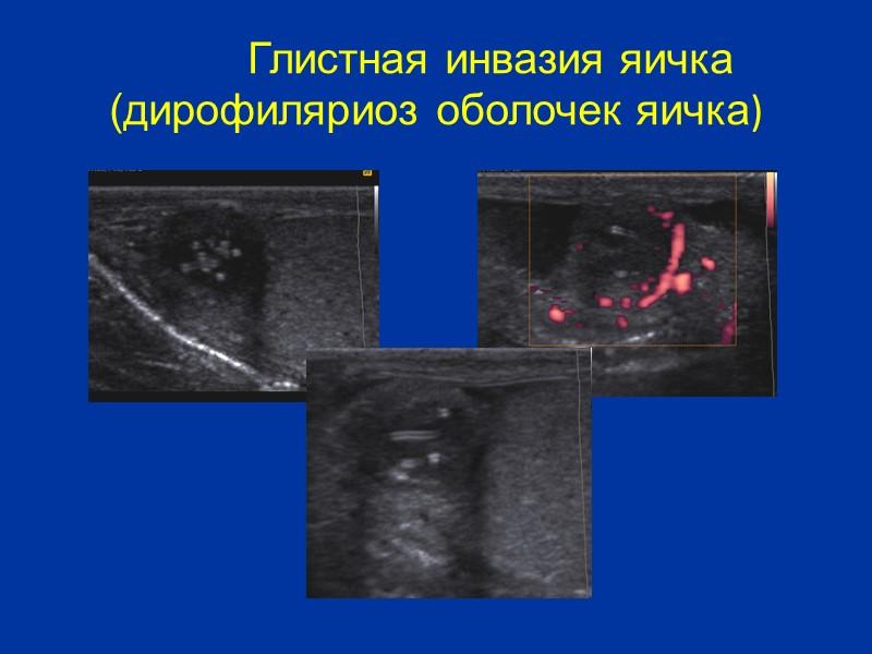 Перекрут яичка Ротационное сдавление сосудистой ножки, которая наблюдается при перекруте яичка приводит к развитию